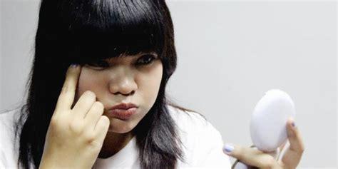 Wanita Hamil Lebih Agresif 7 Penyebab Utama Munculnya Keriput Merdeka Com