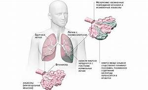 Фиброз печени лекарства