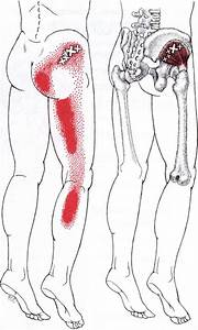 Myofascial Trigger Point Therapy