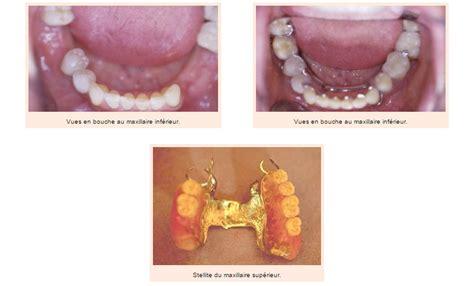les appareils dentaires amovibles cabinet dentaire octogone