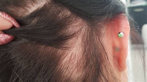 Traction Alopecia: How to Prevent and Fix It | Allure