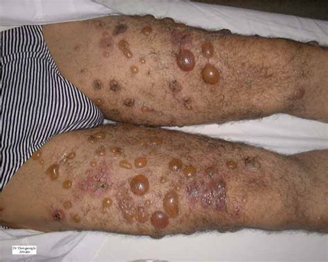 Psoriasis definition and meaning Collins English Dictionary
