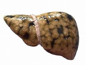 Лекарства от жирового гепатоза печени