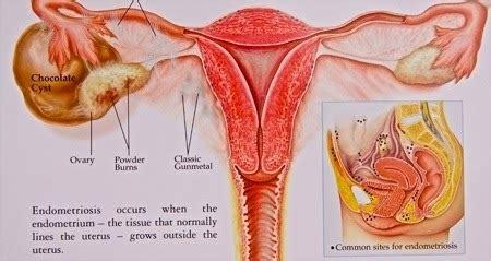 Kandungan Cairan Wanita Obatuntuksehat Penyebab Penyakit Kista Pada Wanita
