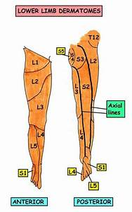 Spondylolisthesis Blog: Sciatic Nerve--what the heck is it?