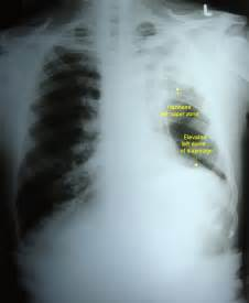 Lesions On Lung X-ray