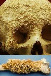 Bone Cancer   Damnthatsinteresting