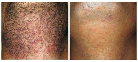 laser hair removal philadelphia  face skincare