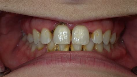 gallery fontenot family dentistry
