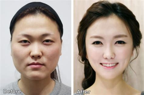 South Korean Plastic Surgery So Good People Need. Online Mba Universities Insurance For Audi Tt. Comparative Advantage Examples. Millers Carpet Cleaning Eb 5 Visa Investments. Sponsor A Child In Pakistan Crm Software Sap. Wealth Management Women Quinnipiac Online Mba. How To Claim For Bankruptcy Llc Formation Nj. Top Social Media Agencies Hi School Pharmacy. Apply To University Of California