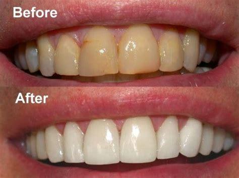 10 Cara Cepat Alami Memutihkan Gigi Kuning Tanpa Efek