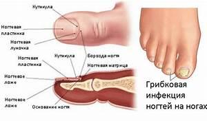 Схема лечения цитросептом грибка ногтей