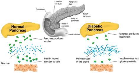 foods   heal  pancreas ehealthyfood