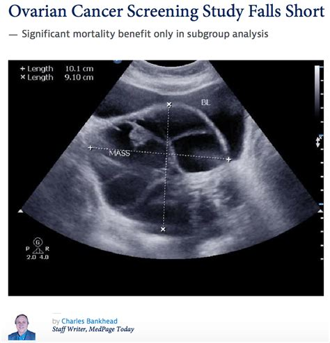 cancer ovarian screening star colon screen story colonoscopy healthnewsreview tribune stories emphasis choice than