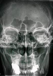 Side View Head X