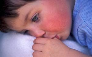 Scarlet Fever Symptoms Warning As Cases Hit Almost 50