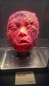 Blood Vessels Of The Face
