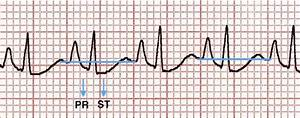 The Ecg In Chronic Lung Disease