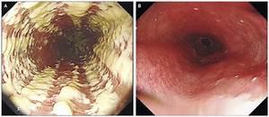 Candida Esophagitis