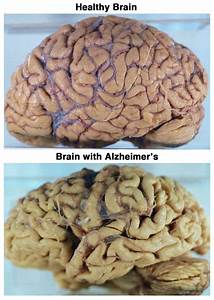 Alzheimers Brain Pictures