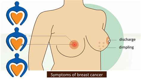 Breast Cancer Symptoms And Treatment Youtube