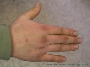 Папиллома лечение полынью огулов
