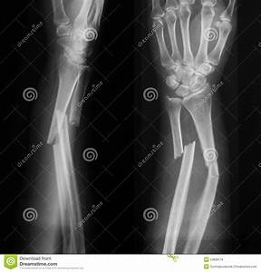 X-ray Image Of Broken Forearm, AP And Lateral View. Stock ...