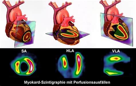 myokardperfusionsszintigraphie kantonsspital stgallen