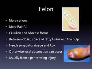 Felon Vs Paronychia Nail Infection