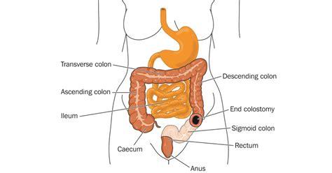 colostomy surgery  ibd ibdrelief