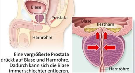 vergrößerte prostata mann