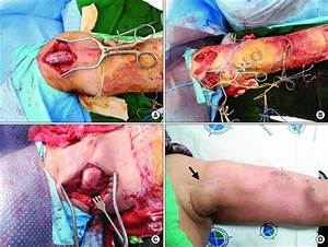 Representative Case Of Cephalic Vein Transposition For