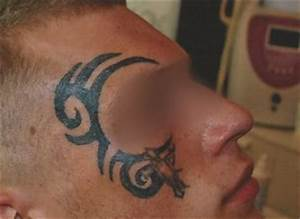 Tattoo Kosten Berechnen : tattooentfernung modern schonend tattoolos ~ Themetempest.com Abrechnung