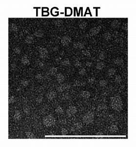 Transmission Electron Micrograph Of Tbg