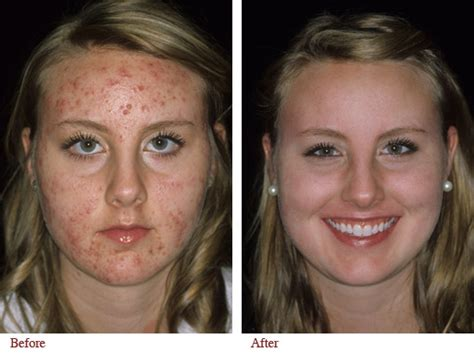 roaccutane and accutane difference metformin 750 mg er