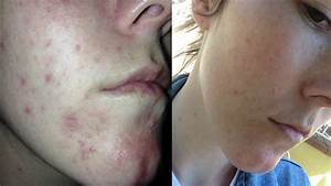 What I wish I knew during my cystic acne breakout and how ...