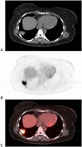 Positron Emission Tomography With Computed Tomographic
