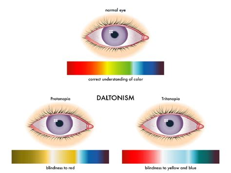 color blindness symptoms colour blindness symptoms causes and treatments