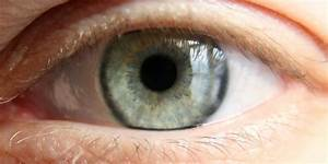 Sleeping With Contact Lenses In Made This Man Go Blind In ...