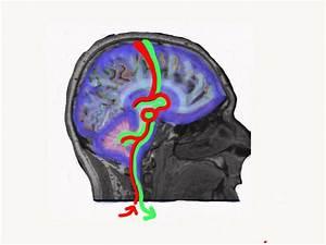 New Sensory Brain Development And Feeding Strategies