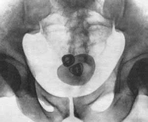 Свечи для лечения и профилактики простатита у мужчин