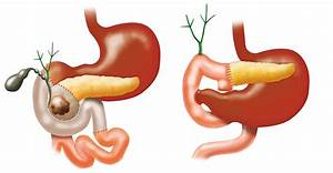 Nutrition Therapy After Whipple Procedure
