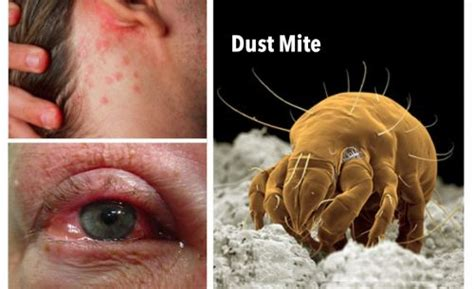 Dust Mites And Allergens In Your Home? We Can Help In Sw