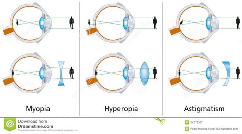 operation lasik astigmate vision defects myopia hyperopia and astigmatism stock 448 | vision defects myopia hyperopia astigmatism illustration three how to correct biconcave biconvex lenses 34372367