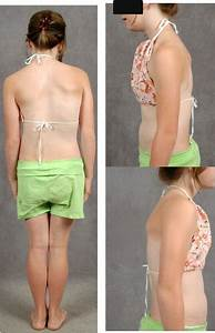 Spine Case  Adolescent Idiopathic Scoliosis In A 15