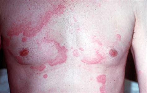 Rode huid jeuk