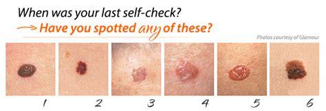 skin cancer awareness rejuvent medical spa