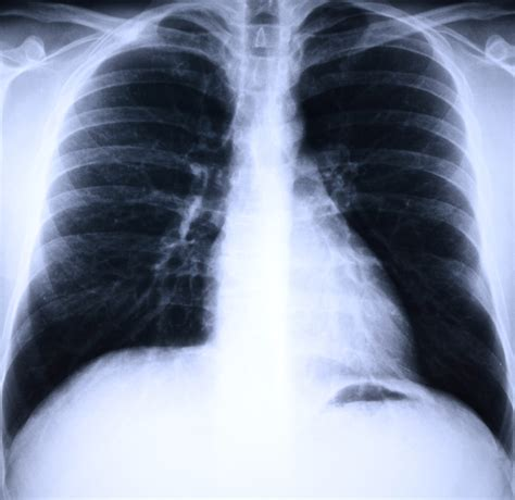 lung cancer screening health stage