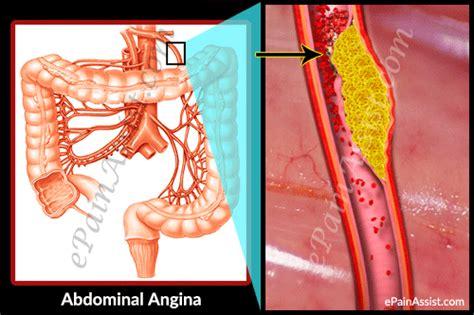 Abdominal Angina: Treatment, Causes, Symptoms, Pathophysiology