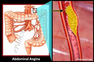 Abdominal Angina  Treatment  Causes  Symptoms  Pathophysiology